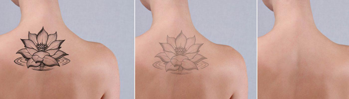 Indepartare Stergere Tatuaje Bucuresti