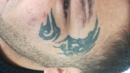 Preturi Indepartare / Stergere / Inlaturare tatuaje cu laser