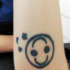 Pret Indepartare / Stergere / Inlaturare tatuaj cu laser